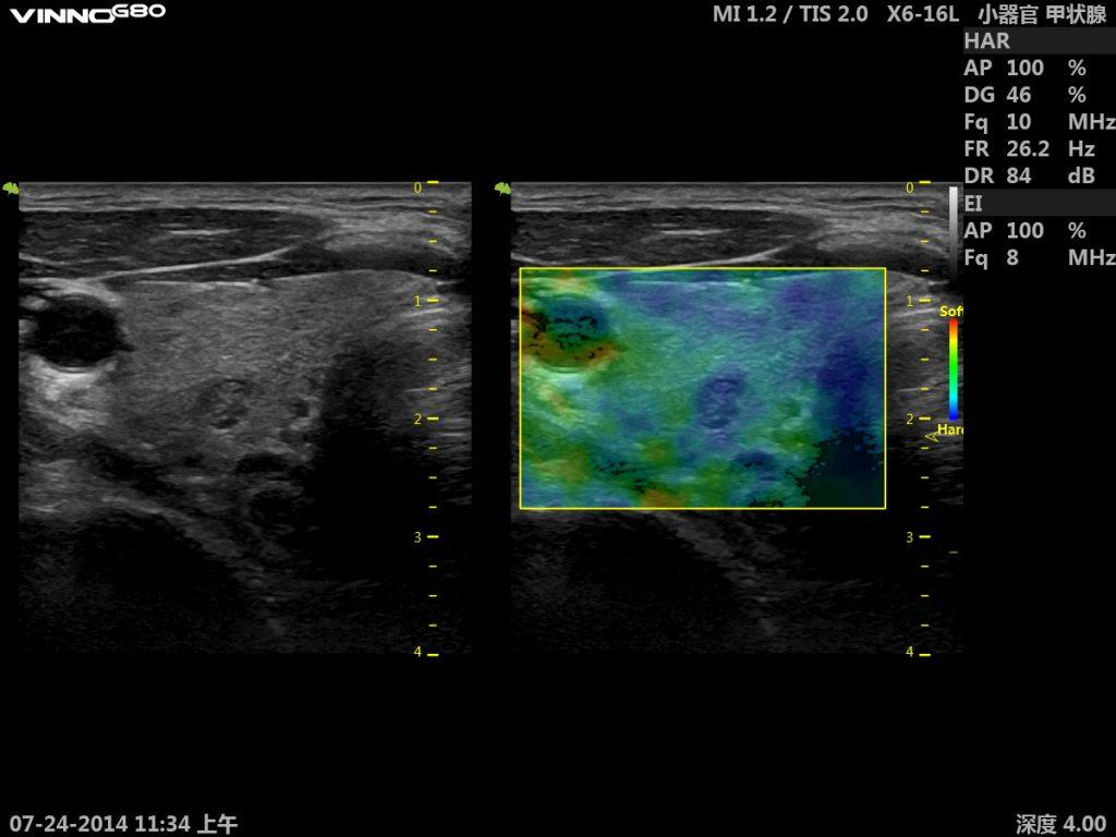 Modul5-Regiunea-cervicala-progresein-ultrasonografie